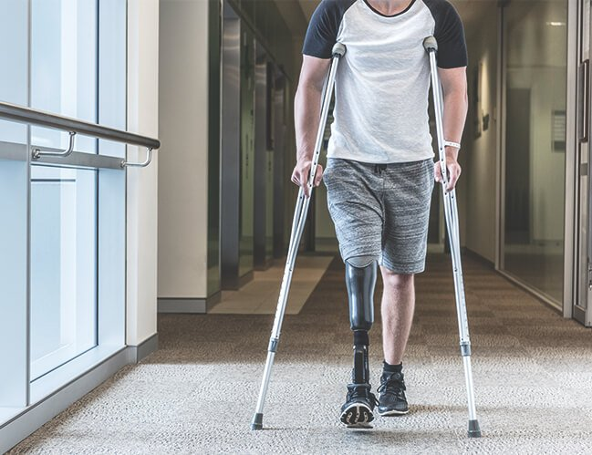 A man without a leg with crutches